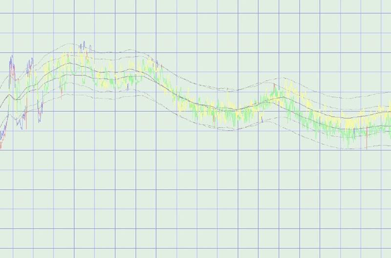 Grafik der Stimme bei der Stimmfrequenzanalyse